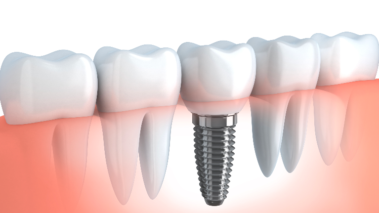 Cross Section of Dental Implant | Monroe, MI Dentists