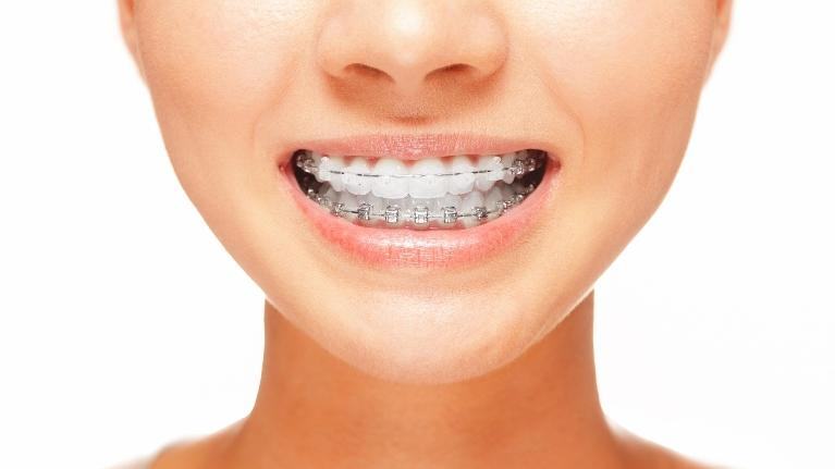 Six month braces orthodontics monroe MI